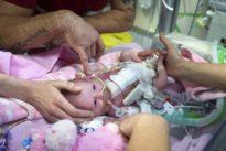 Baby überlebt trotz Gendefekts: Das Herz am falschen Fleck