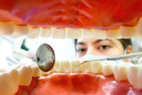 Unsichtbare Korrektur: Lassen sich die Zähne richten, ohne dass es jemand merkt?