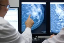 Gentests: Keine Angst mehr vor der Chemo?