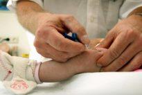 Masern: Ein Schubs zum Impfen