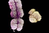 """Zellenaustausch vor der Geburt: """"Viele Vorteile für Mutter und Kind"""""""