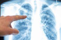 KI berechnet Sterbedatum: Das Röntgenbild vom eigenen Tod